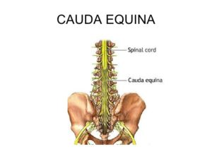 Medical drawing of Clauda Equina Syndrome